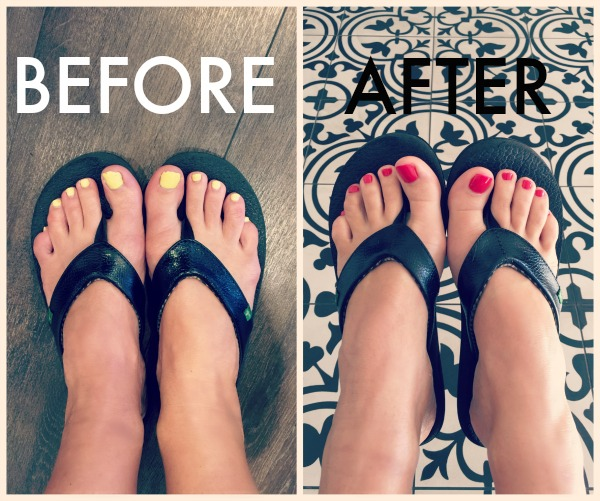 before after pedi